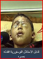 Gaza child victim of white phosphorous Syrian Arab News Agency